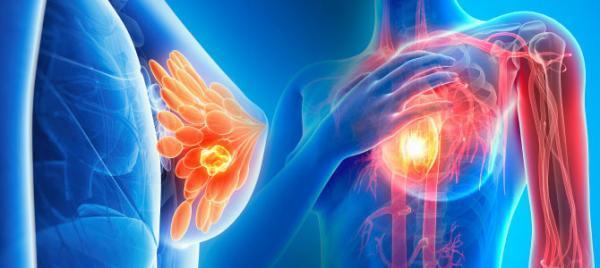 علت و علائم سرطان سینه در زنان و مردان